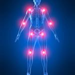 Какой врач лечит артроз?