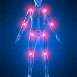 Какой врач лечит артроз суставов? - Medicmagazin ru