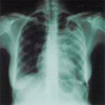 Какой врач делает флюорографию