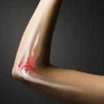 Какой врач лечит суставы рук